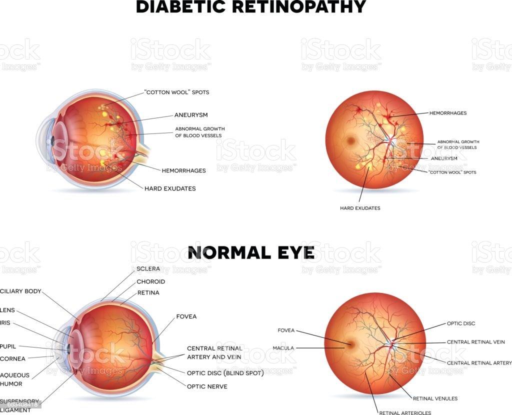 Diabetic Retinopathy Stock Vector Art & More Images of Anatomy ...