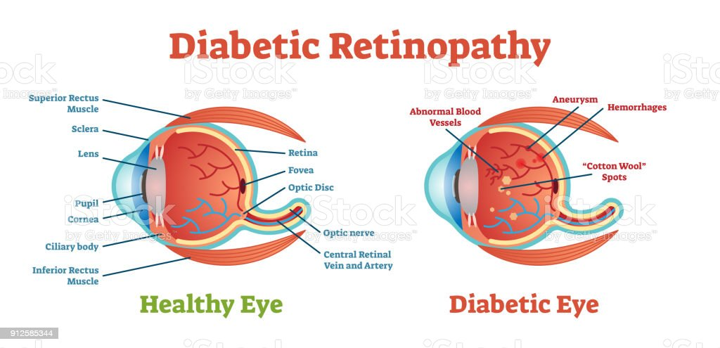 Diabetic Retinopathy vector illustration diagram, anatomical scheme. vector art illustration