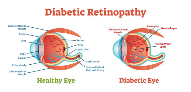 Diabetic Retinopathy vector illustration diagram, anatomical scheme. Diabetic Retinopathy vector illustration diagram, anatomical scheme. Medical educational information. medical diagram stock illustrations