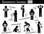 Diagnostic Imaging & Multiple Disease stick man vector ( Pulmonary Tuberculosis , Arthritis , Cervical Spondylosis , Lumbar Spondylosis & Spondylolisthesis , Scoliosis , Osteoarthritis Knee , Stroke )