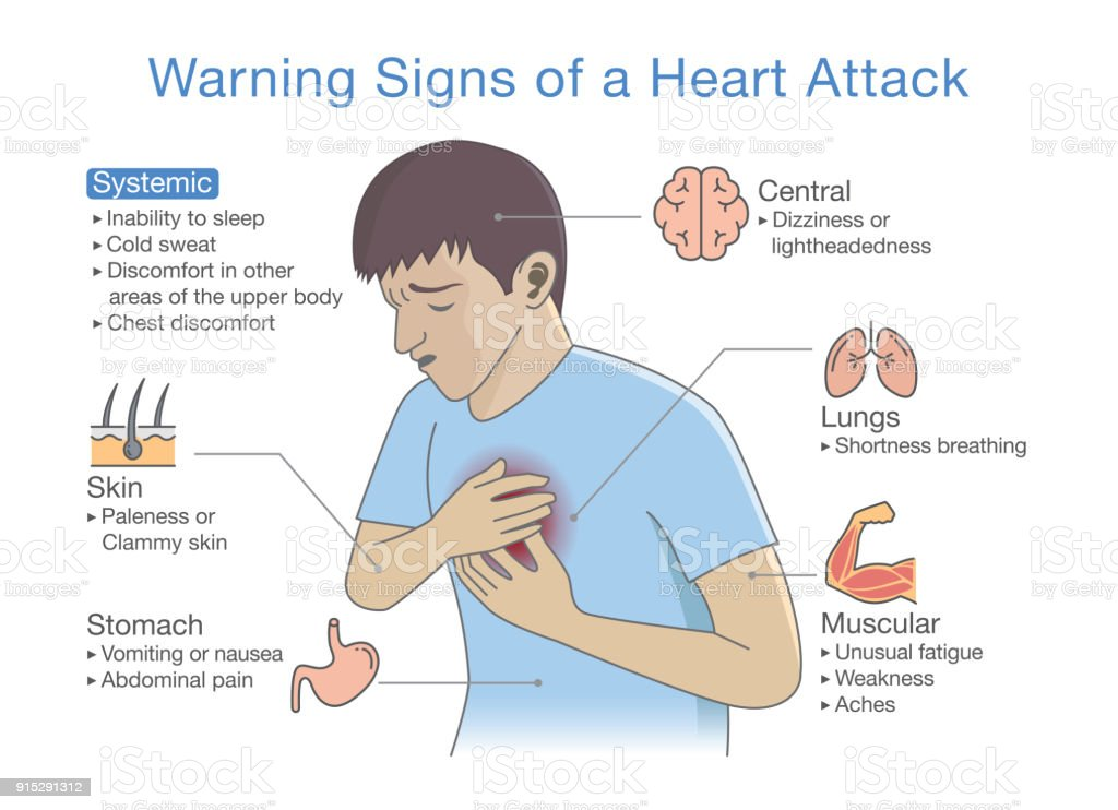 Diagram about warning signs of a heart attack arte vetorial de diagram about warning signs of a heart attack diagram about warning signs of a heart ccuart Image collections