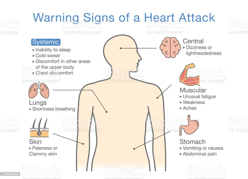 Diagram about warning signs of a heart attack stock vector art diagram about warning signs of a heart attack royalty free diagram about warning signs ccuart Image collections