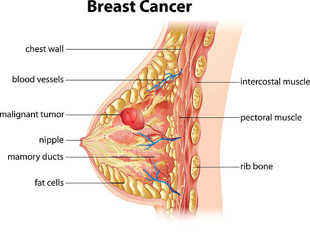 Diagram of breast cancer Cross section showing formation of breast cancer breast stock illustrations