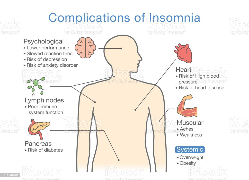 diagram of complications of insomnia stock vector art more images of anxiety 915291306 istock. Black Bedroom Furniture Sets. Home Design Ideas
