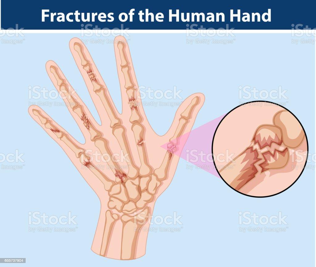 Diagram Anatomy Hands Artist Custom Wiring Diagram