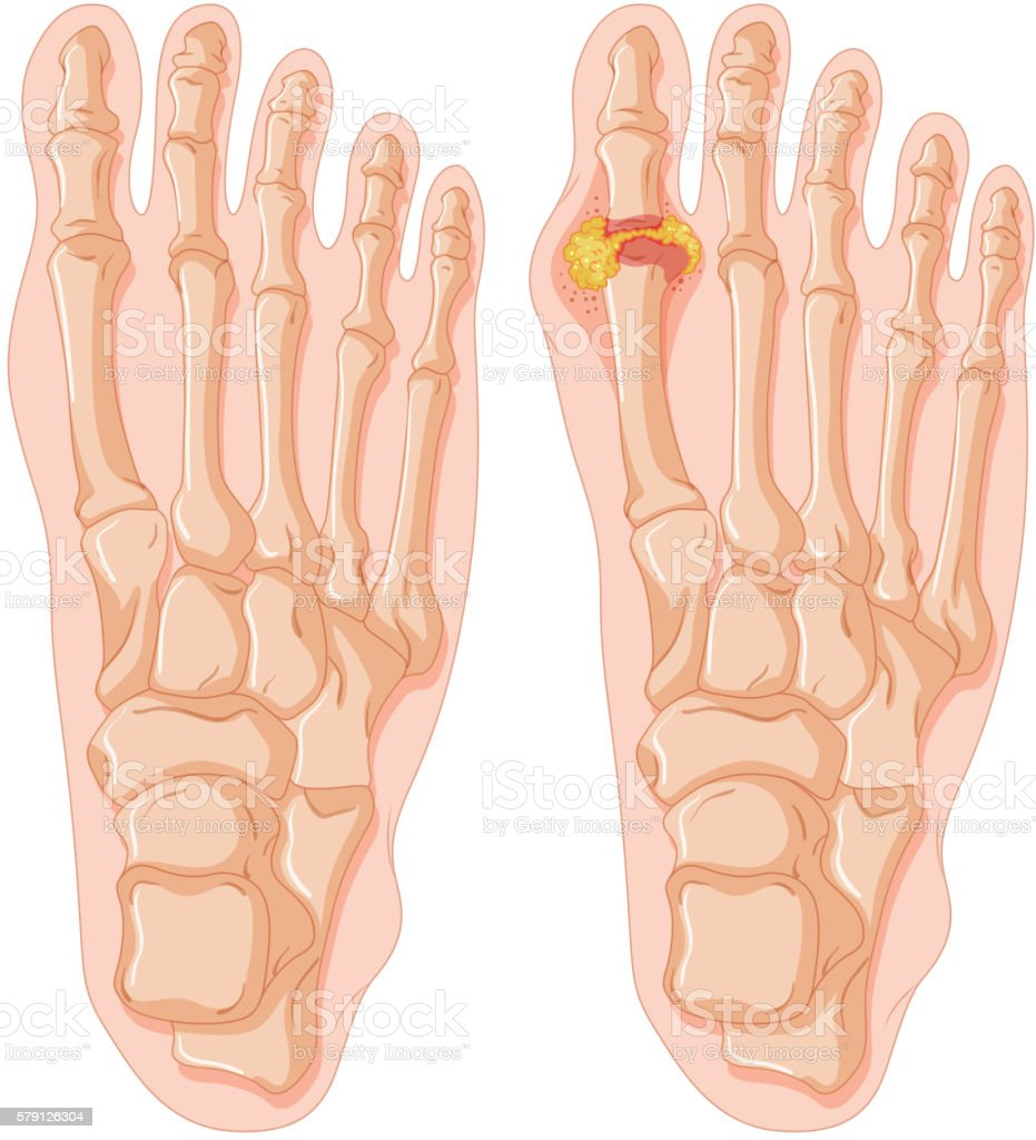 Diagram Of Gout In Human Toe stock vector art 579126304 | iStock