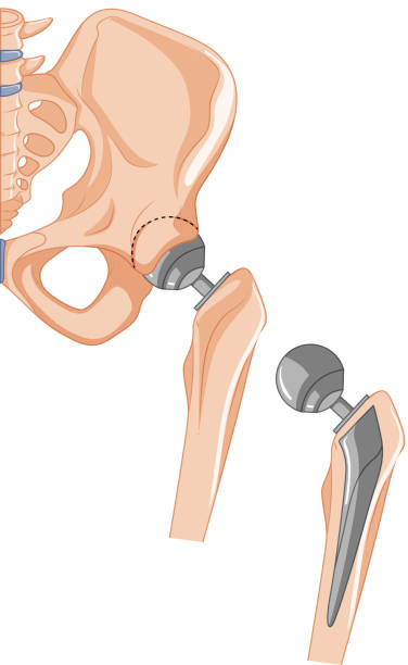 Royalty Free Hip Bone Clip Art, Vector Images & Illustrations - iStock