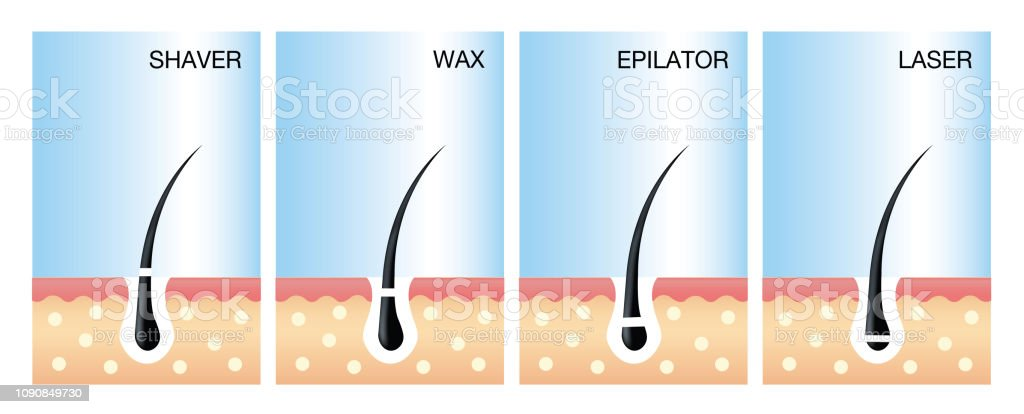 Diagram Of Laser Hair Removallaser Hair Removal Vector Vector Illustration Of Different Methods