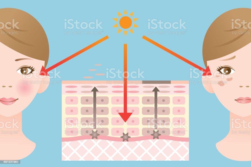 royalty free sun damage skin clip art vector images illustrations rh istockphoto com Printable Skin Diagram Skin Diagram Worksheet