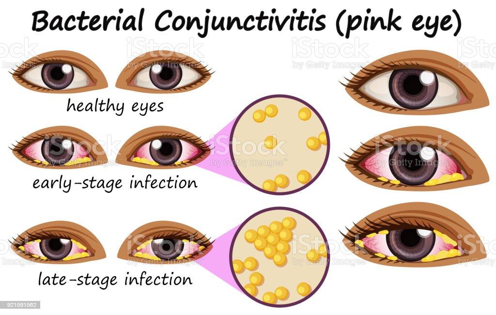 Ilustración de Diagrama Que Muestra La Conjuntivitis Bacteriana En ...