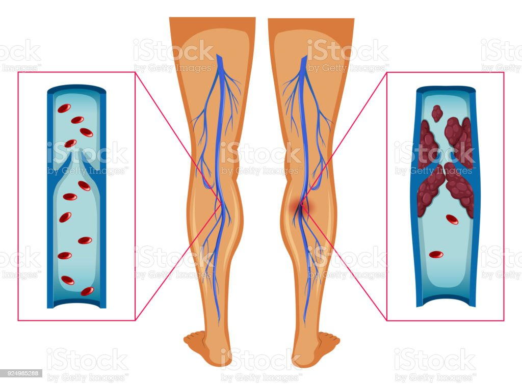 Diagram showing blood clot in human legs vector art illustration