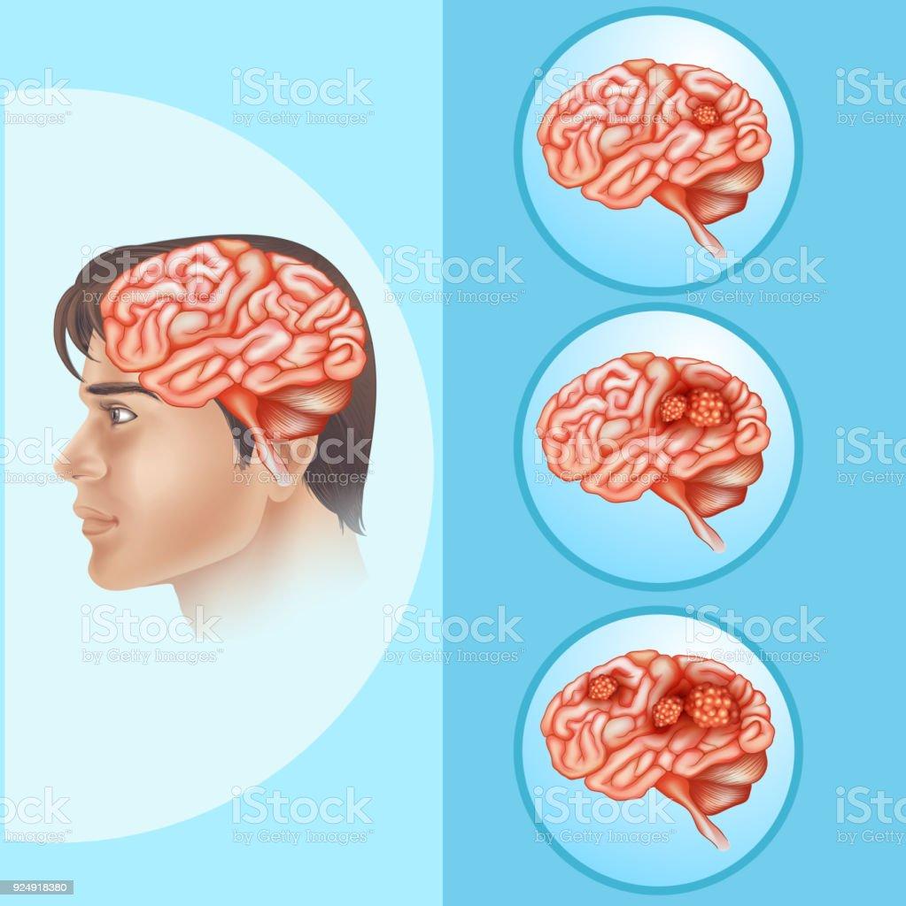 Ilustración de Diagrama Que Muestra Cáncer Cerebral En Humanos y más ...