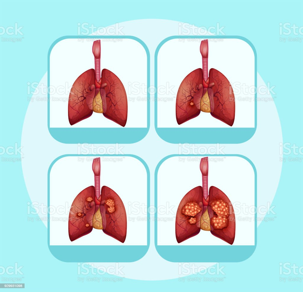 Diagram Showing Different Stages Of Lung Cancer Stock Vector Art ...