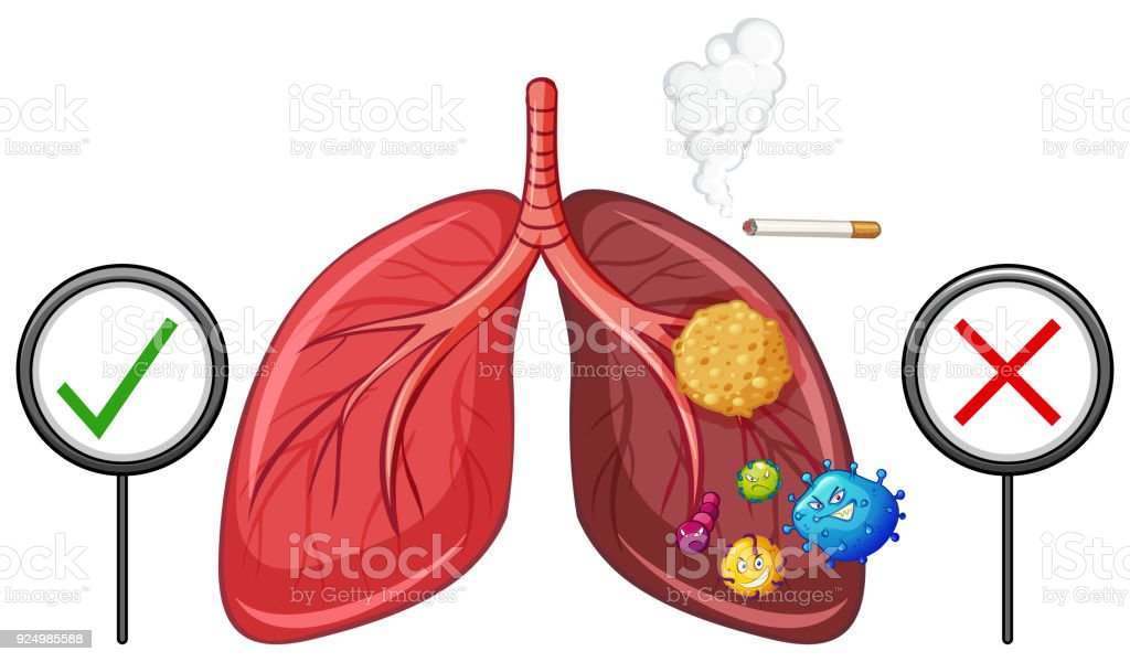 Diagram showing healthy and unhealthy lungs stock vector art more diagram showing healthy and unhealthy lungs royalty free diagram showing healthy and unhealthy lungs stock ccuart Images