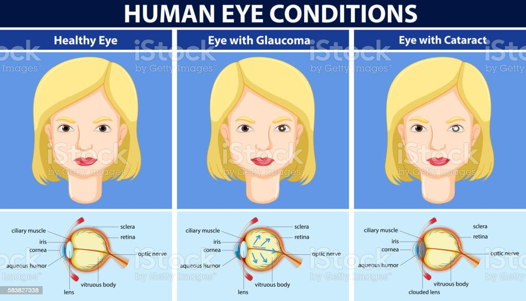 Diagram showing human eye conditions stock vector art more images diagram showing human eye conditions royalty free diagram showing human eye conditions stock vector art ccuart Choice Image