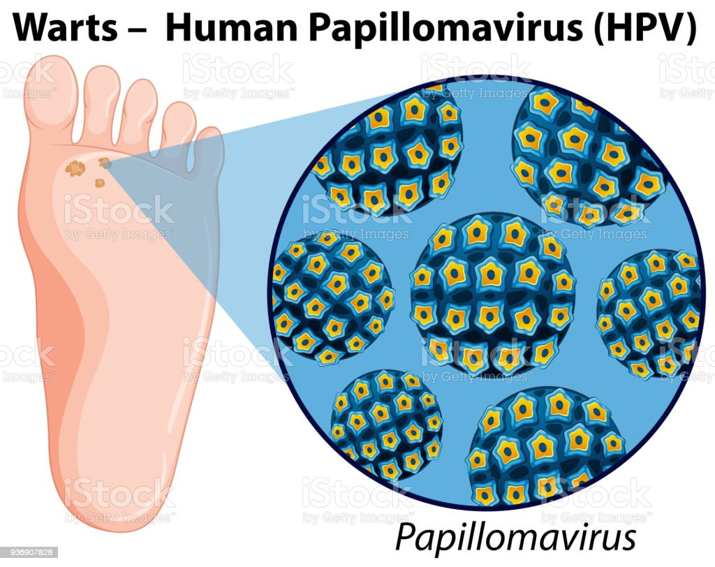 Diagram Showing Human Papillomavirus Stock Illustration