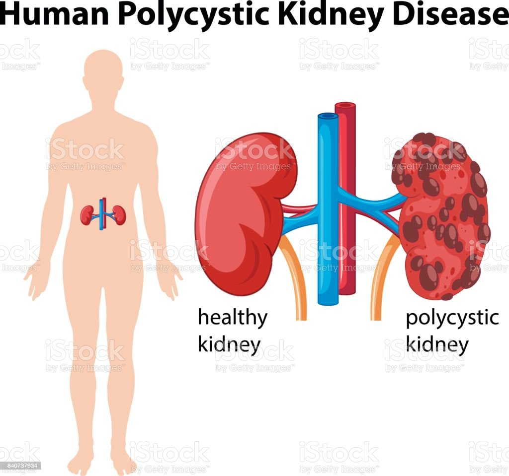 Diagram showing human polycystic kidney disease stock vector art diagram showing human polycystic kidney disease royalty free stock vector art ccuart Choice Image