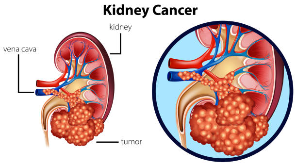ilustraciones, imágenes clip art, dibujos animados e iconos de stock de diagrama que muestra cáncer de riñón - cáncer tumor