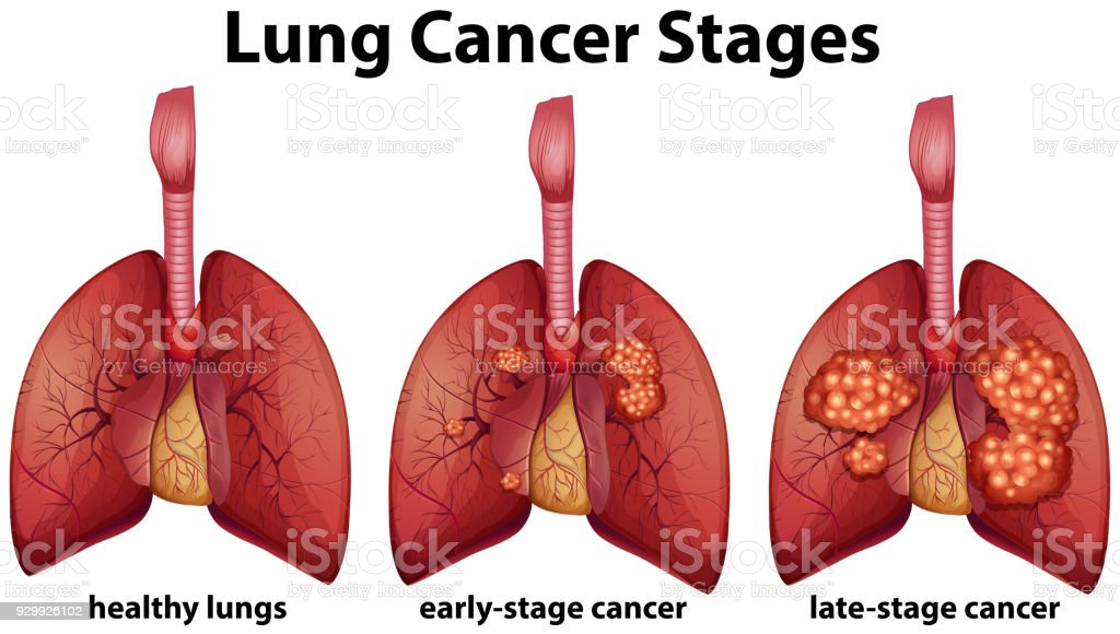 Diagram Showing Lung Cancer Stages Stock Vector Art & More Images of ...
