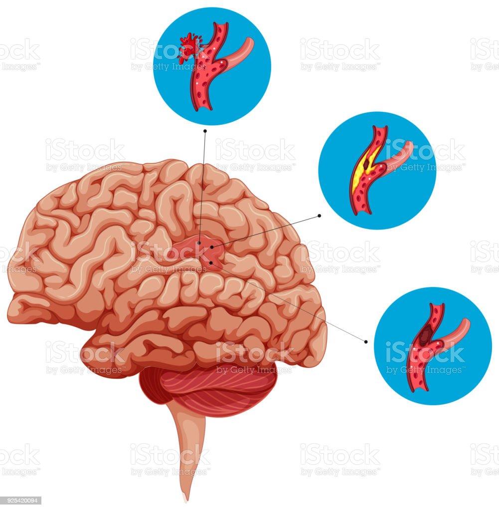 Diagrama Que Muestra Problemas Con Cerebro - Arte vectorial de stock ...