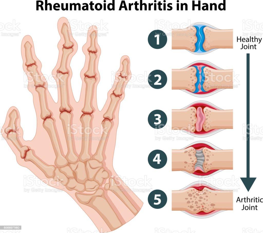 Gemütlich Skelett Hand Anatomie Fotos - Physiologie Von Menschlichen ...