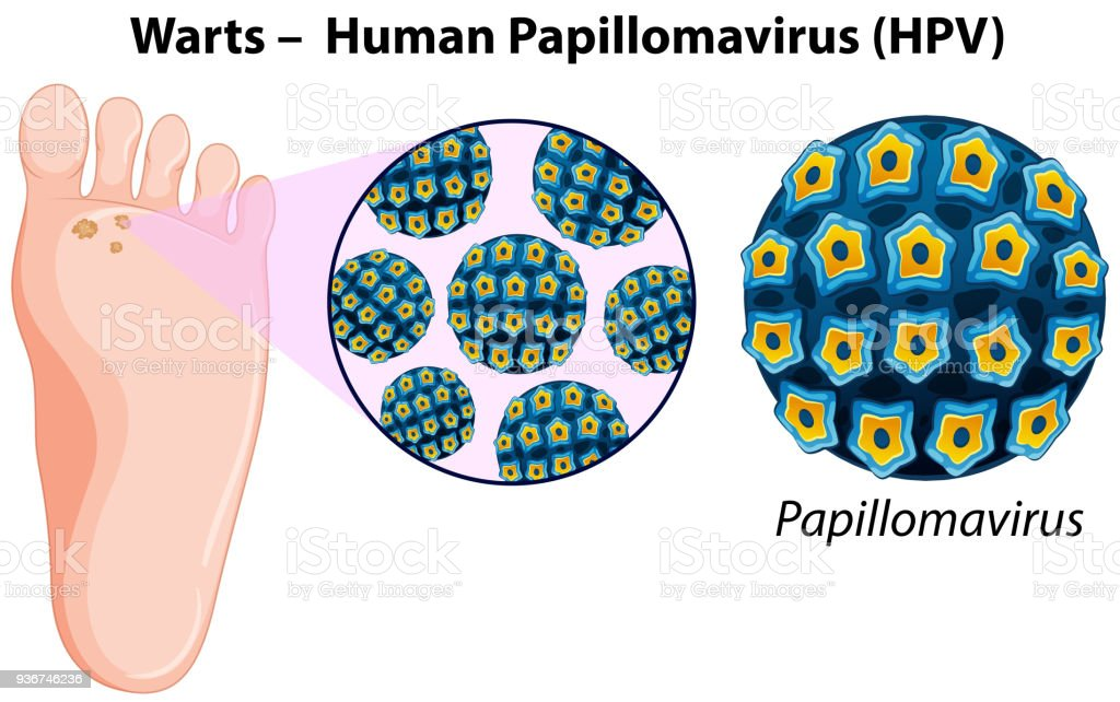 Diagrama Que Muestra Las Verrugas En El Pie Humano - Arte vectorial ...