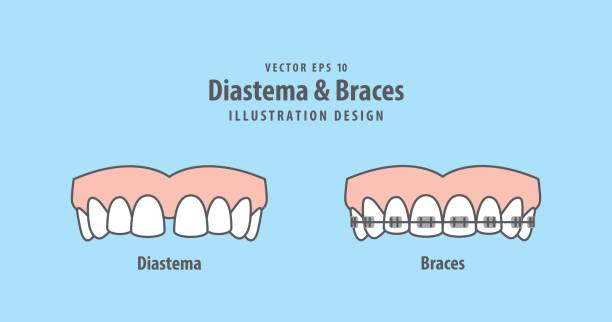 diastema & braces illustration vector on blue background. dental concept. - orthodontist stock illustrations, clip art, cartoons, & icons