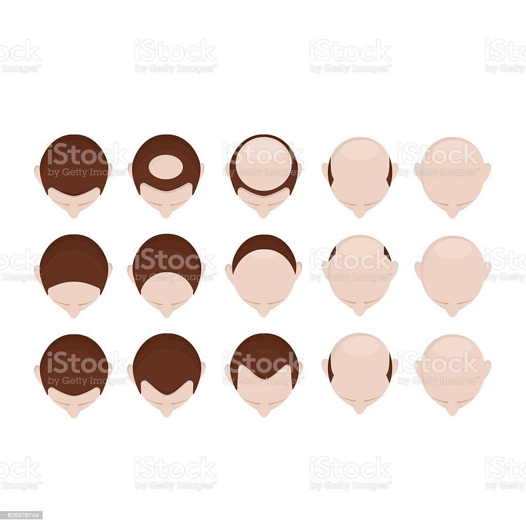 Different stage of baldness different stage of baldness - arte vetorial de stock e mais imagens de acomia royalty-free