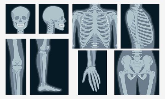 Different x-rays shot of human body part set vector flat illustration