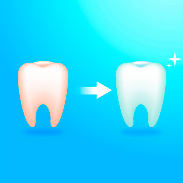 bildbanksillustrationer, clip art samt tecknat material och ikoner med smutsig och ren tanden. behandling hos tandläkaren. ömma tänder - tandblekning