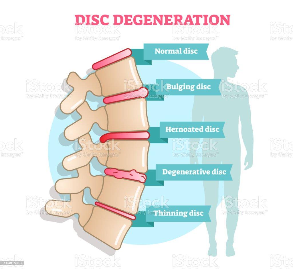 Disc Degeneration Flat Illustration Vector Diagram With