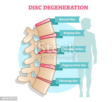 istock Disc degeneration flat illustration vector diagram with condition exampes - bulging, hernoated, degenerative and thinning disc. 904816310