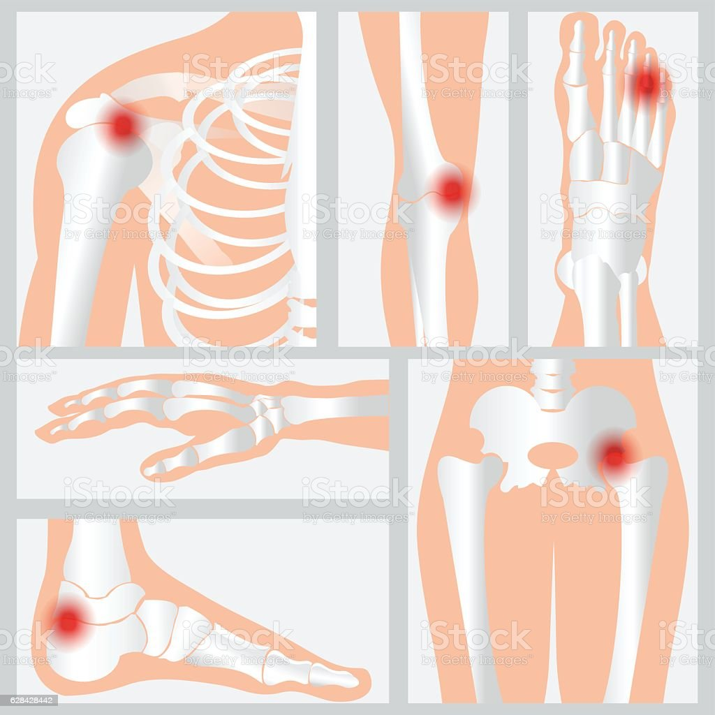 Disease of the joints and bones. vector art illustration
