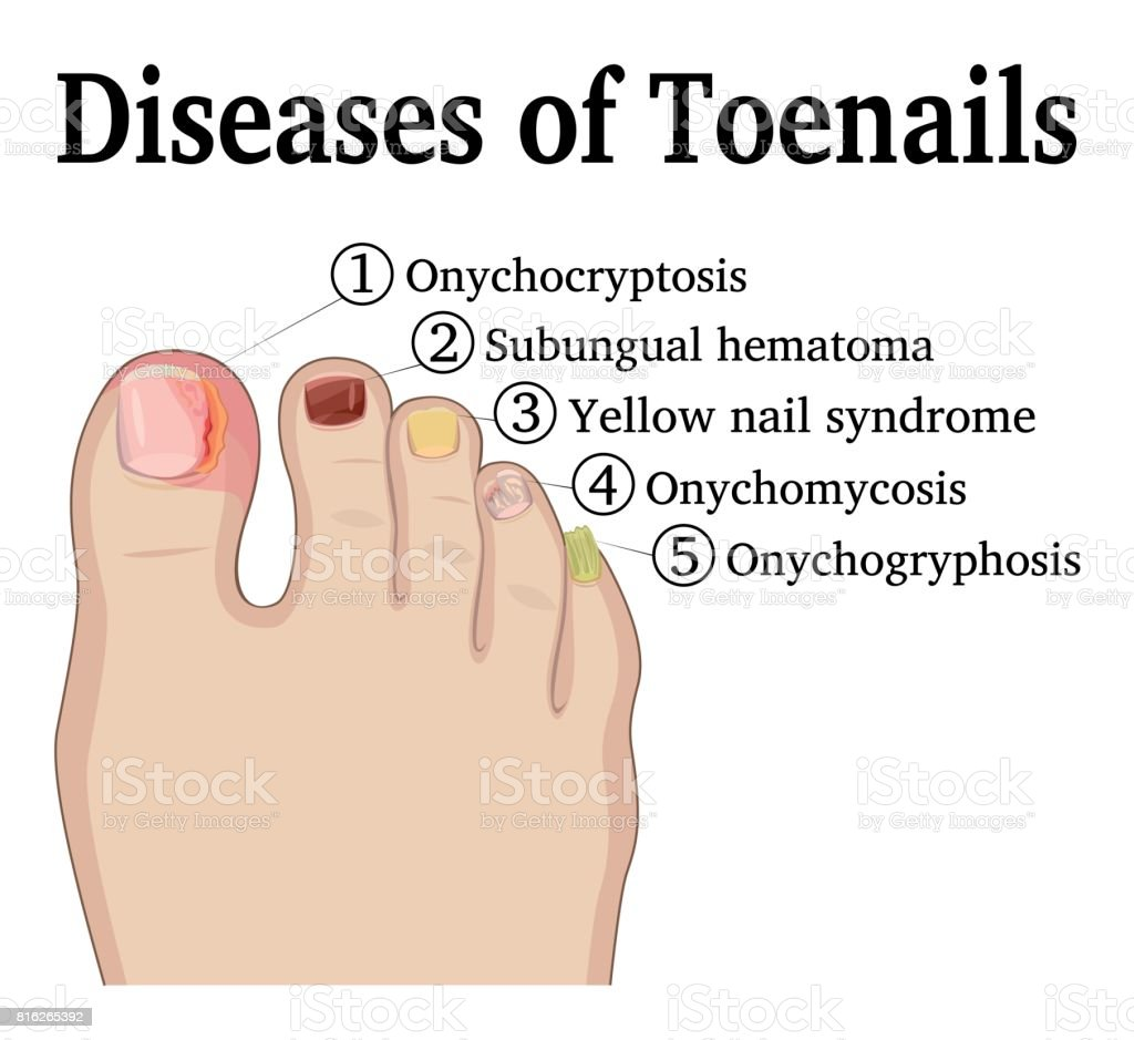 Diseases of Toenails vector art illustration