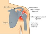 Dislocation Shoulder symptoms or separated.
