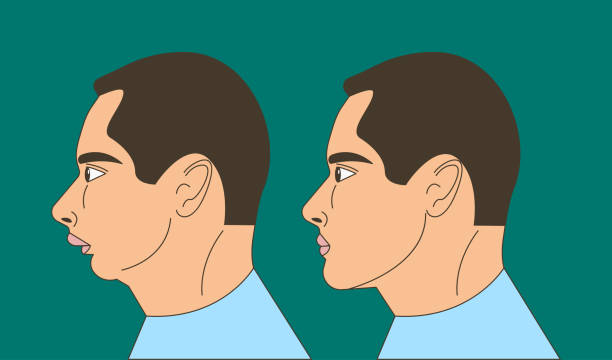 Distal bite illustration Distal bite, man with malocclusion, lower jaw pushing back, bite correction by braces. Vector illustration human jaw bone stock illustrations