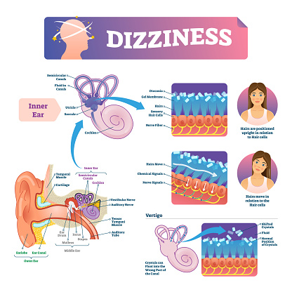 Dizziness Vector Illustration Labeled Scheme With Inner Ear And Vertigo Stock Illustration - Download Image Now