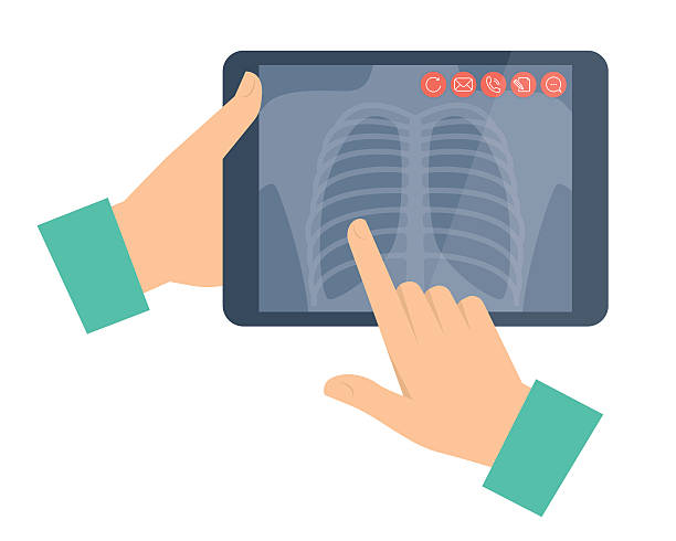 Doctor holding a tablet computer with lung radiography. Telemedi Doctor holding a tablet computer with lung radiography. Telemedicine, telehealth flat concept illustration. Hands, chest x-ray image. Vector design element for digital online medicine infographic. x ray image stock illustrations