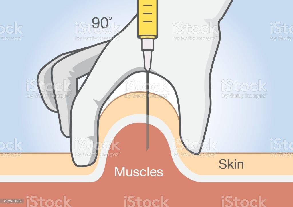 Arzt Medikamente In Das Muskelgewebe Mit Injektionsnadel Einfügen ...