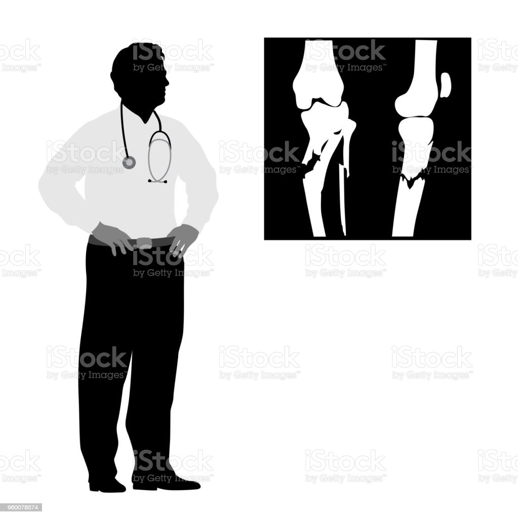 Doctor Medical Advice Fracture vector art illustration