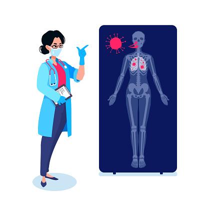 En Läkare Som Visar Hur Coronavirusmolekyler Infekterar En Person På En Röntgenbild Skadade Lungor Infographic Covid19 Kontamineringsprocessen Människans Anatomi Skelett-vektorgrafik och fler bilder på Anatomi