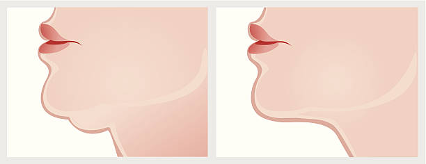 double chin, before and after surgery Vector image of double chin on a white background. Download includes high resolution large size jpeg. neck stock illustrations