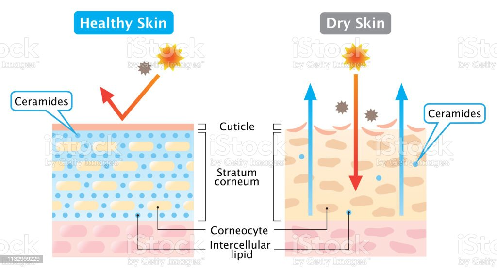 dry and healthy skin layer illustration  beauty and skin care concept -  illustration