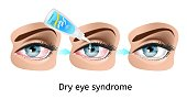 Dry Eye Syndrome Scheme with Treatment Stages from Illness to Healing, Realistic Vector Isolated on White. Illustration of Lubricating Inflamed, Reddened Womans Eyes with Eye Drops or Artificial Tears