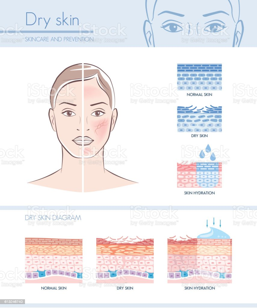 Dry skin vector art illustration