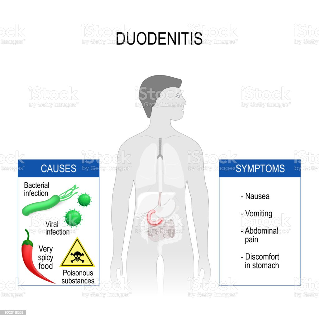 Symptoms and treatment of duodenitis - take care of your health