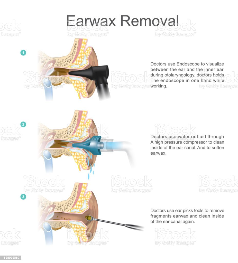 Earwax Removal. EARWAX s a common problem which is easily treated. vector art illustration