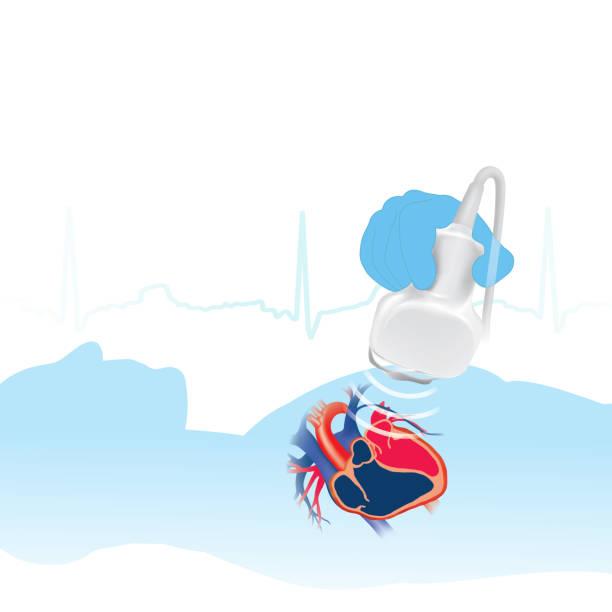 Echocardiogram white background vector art illustration