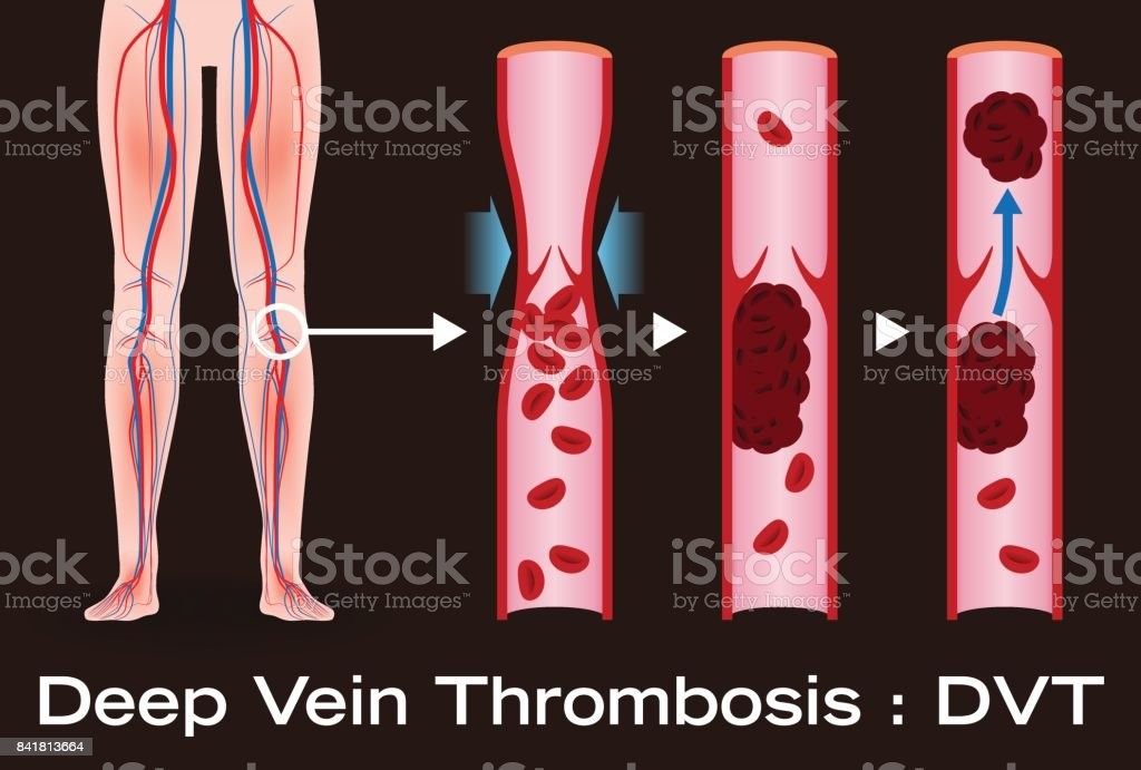 Economy class syndrome mechanism, deep vein thrombosis(DVT), Pulmonary Embolism(PE), coronary thrombosis, illustration diagram vector art illustration