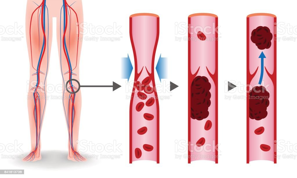Economy class syndrome mechanism, deep vein thrombosis(DVT), Pulmonary Embolism(PE), coronary thrombosis, illustration diagram royalty-free economy class syndrome mechanism deep vein thrombosis coronary thrombosis illustration diagram stock illustration - download image now